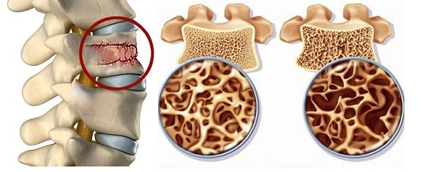 Физиотерапия локтевого сустава