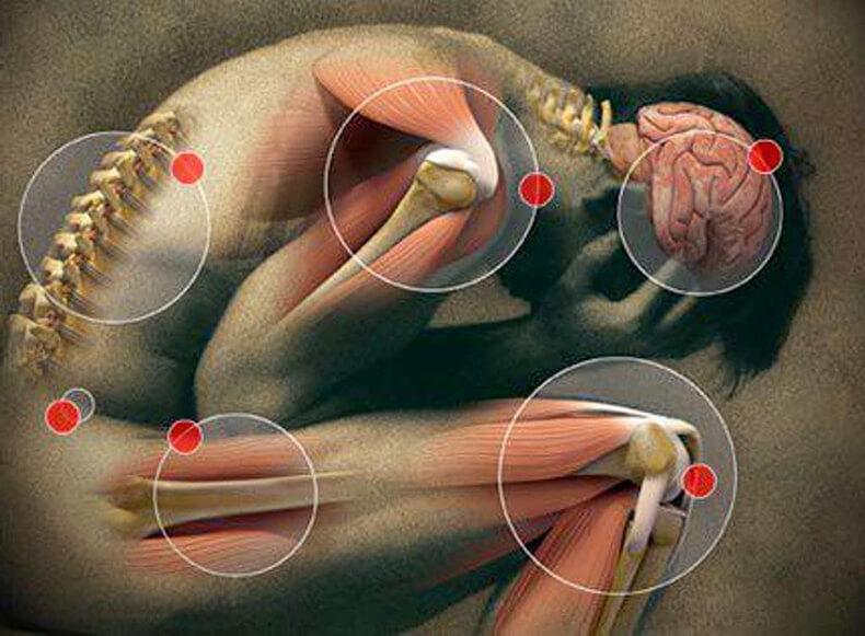 Снятие мышечных спазмов и зажимов