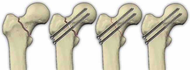 Остеосинтез при переломе