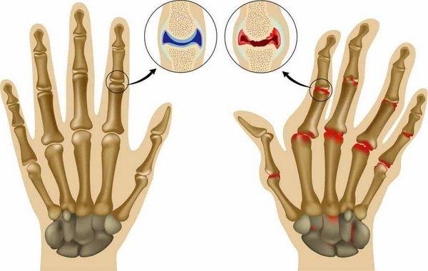 Стадии развития артрита пальцев рук