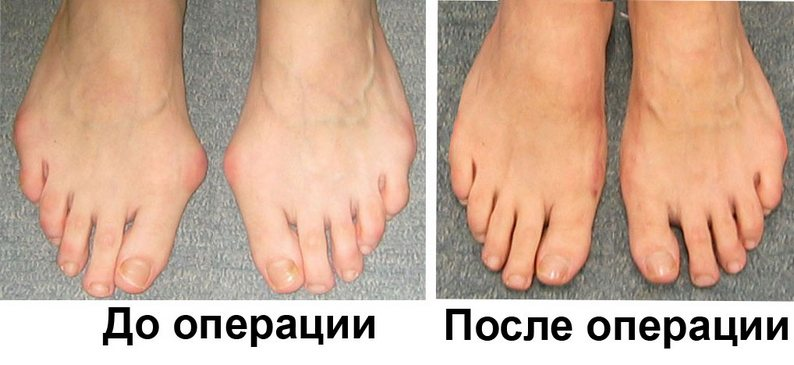 Экзостектомия