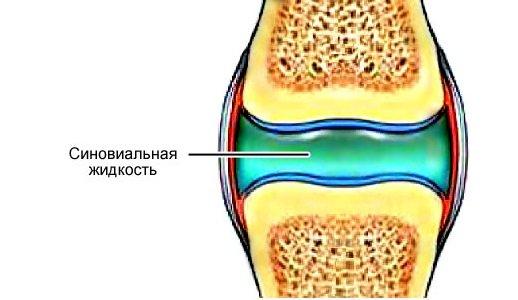 Костная мозоль на пятке